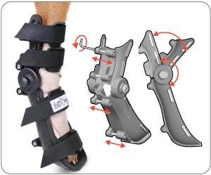 Adjustable Splint